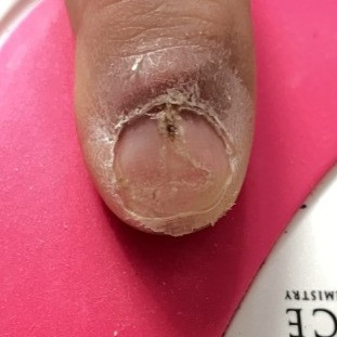 fingernail being repaired
