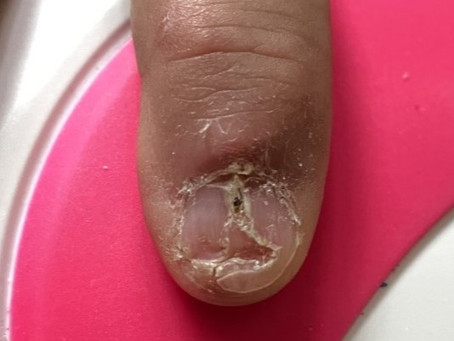Repairing Damaged Nails in Natural Nail Salons
