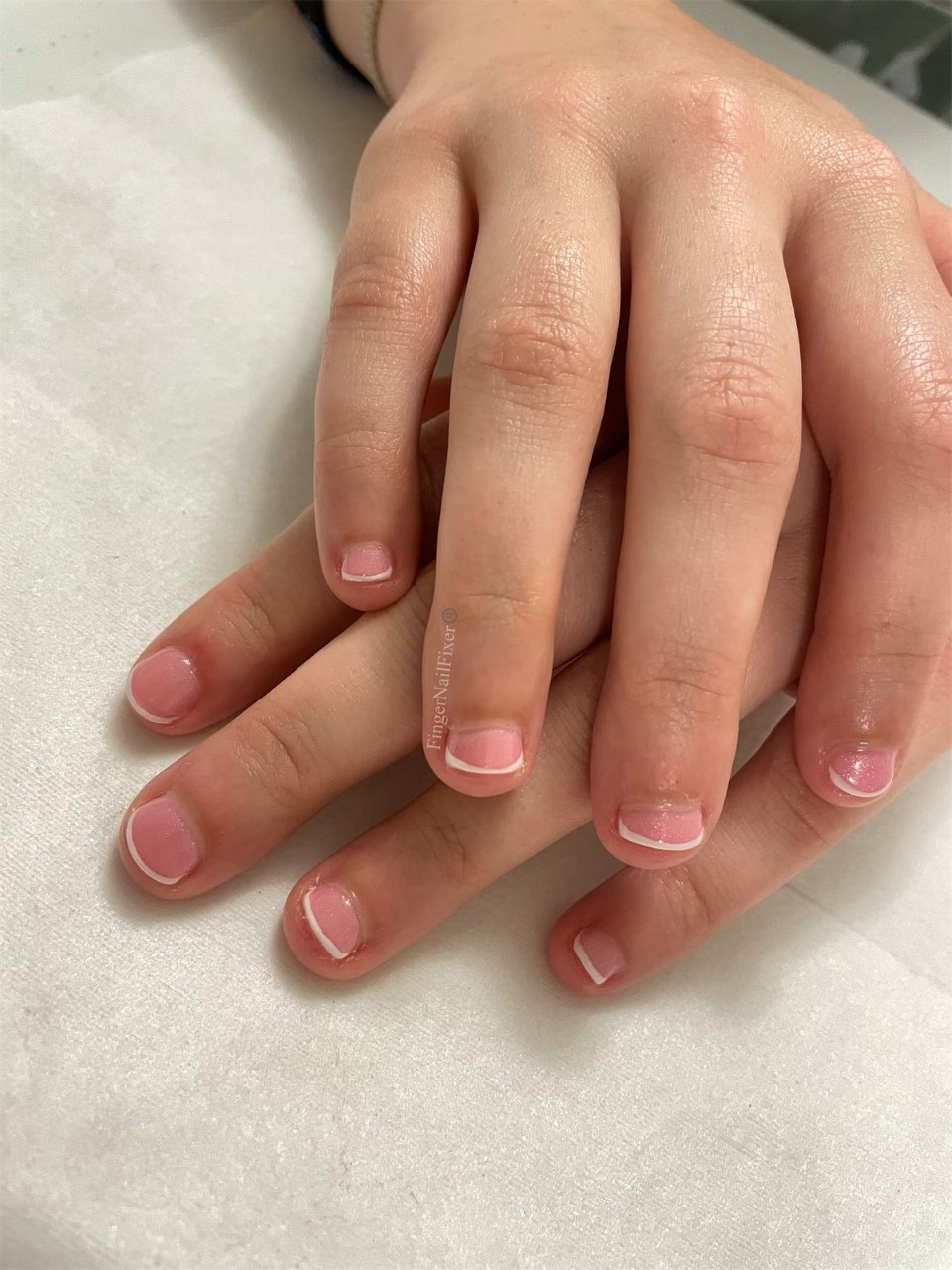 Bitten nails with French manicure.
