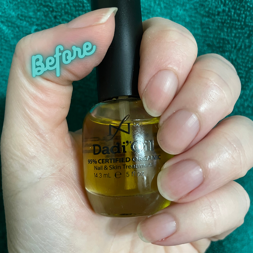 A before photo of nails with Dadi Oil