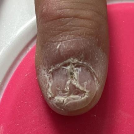 Manicured damaged nail