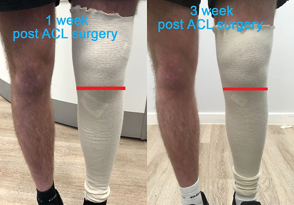 ACL physiolab and compex.jpg