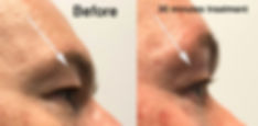 clint eye lid .jpg