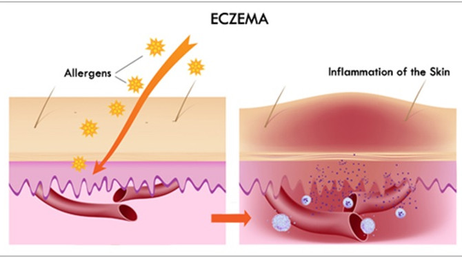 Taking Care of Your Eczema