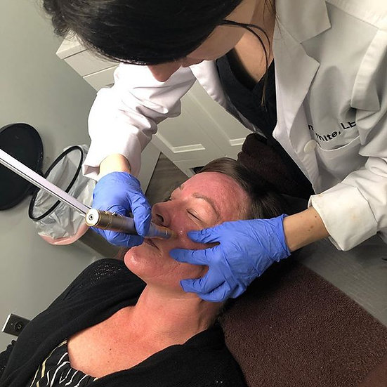 Monthly Laser Skin Rejuvenation and Microdermabrasion