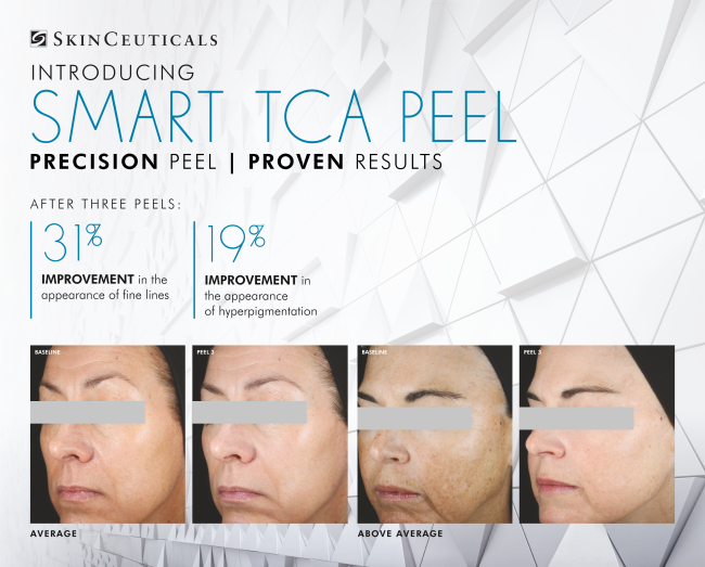 TCA Peel by SkinCeuticals