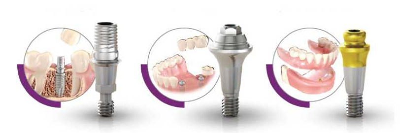 3rdSET_Implant_Solutions_800.jpg
