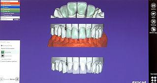 Fischer dental-technik, Verblendtechnik