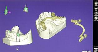 Fischer dental-technik, Modellguss