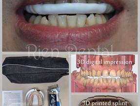 Occlusal splint for teeth grinding.