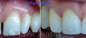 Cosmetic composite bonding to close gap between teeth.