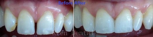composite bonding, close gap between teeth