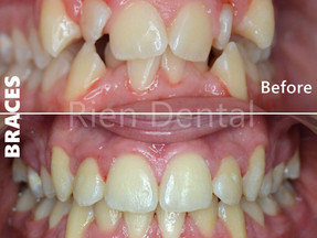 Braces - Give you straight teeth and a confident smile!