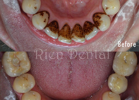 Removal of tartar, plaque and stains on teeth.