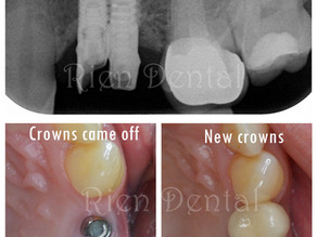 Against all the odds, the dental implants have survived for 13 years.