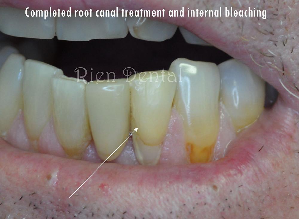 internal bleaching
