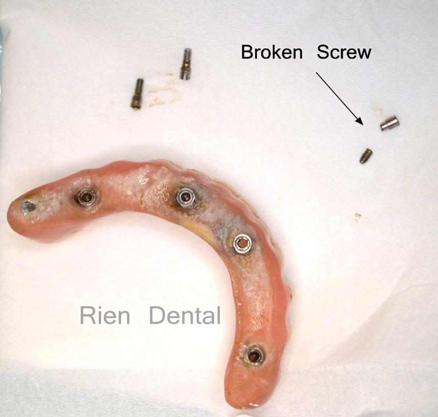 Broken implant screw
