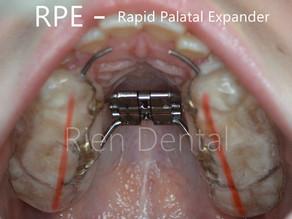 RPE - Rapid Palatal Expander