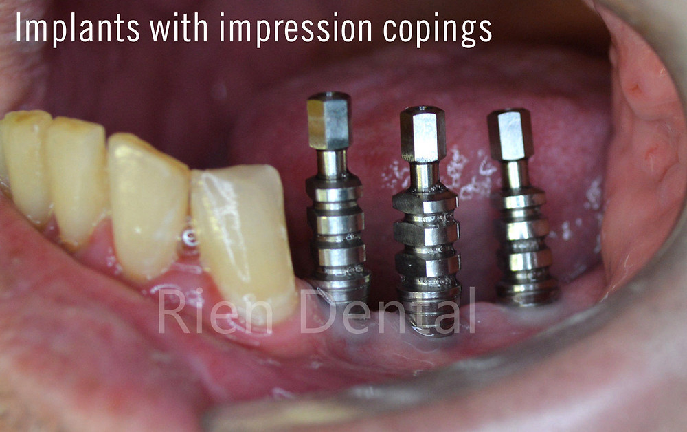 implants with impression copings