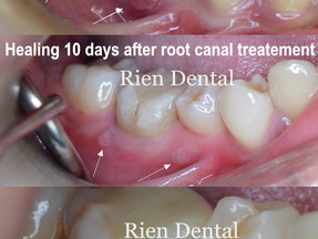 Healing of dental abscess and success of root canal treatment.