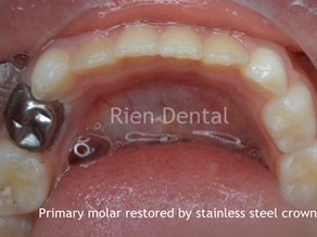 Restore primary teeth with stainless steel crowns.