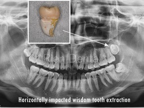 Fully buccolingually impacted wisdom tooth.