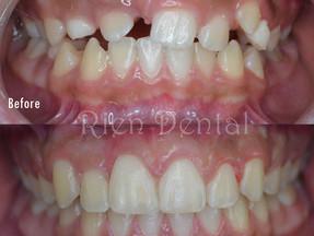 Orthodontic treatment of impacted teeth.