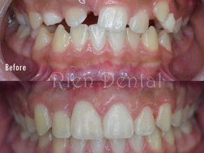 Orthodontic treatment of impacted teeth.