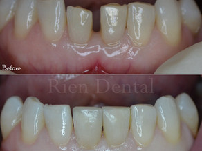 Close to gap with cosmetic bonding.