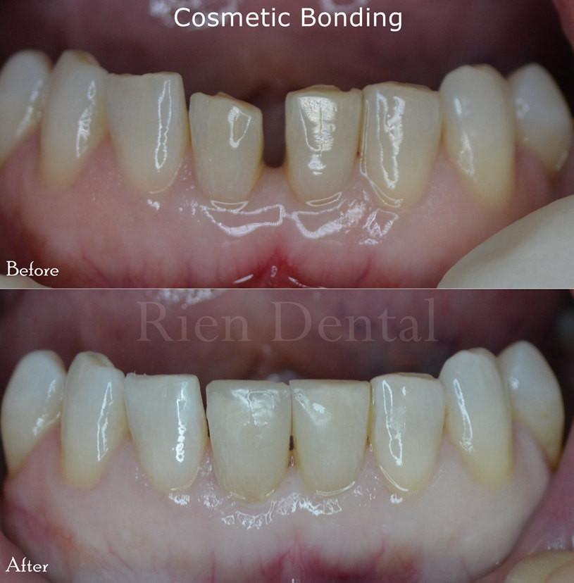 Cosmetic bonding