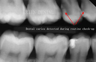 dental caries decay