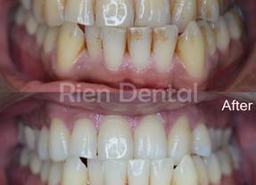 Teeth Clean & Whitening