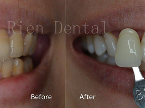 Tetracycline-stained teeth whitening