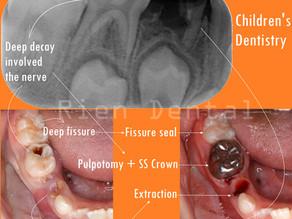 Baby Teeth Matter.