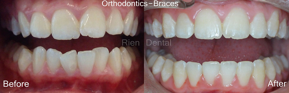 Orthodontics. Braces