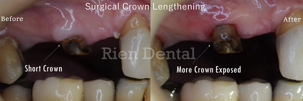 Surgical crown lengthening
