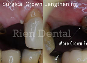 Surgical Crown Lengthening.