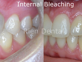 Internal bleaching - the most conservative way to whiten discolored root canal treated teeth.