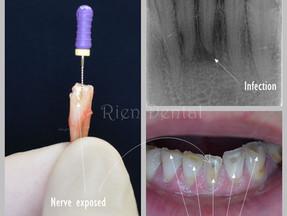 How far can teeth grinding go?