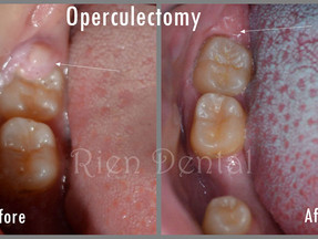 Operculectomy: A Minor Surgery For Wisdom Teeth.
