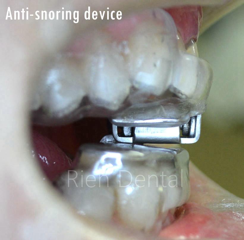 Anti-snoring oral device