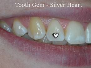 Tooth gems with love.