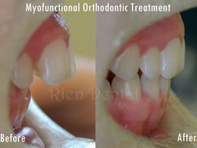 Myofunctional orthodontic treatment - straighten teeth without braces.