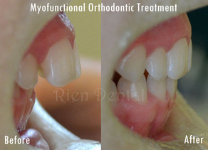 Myofunctional orthodontic treatment - straighten teeth without braces.