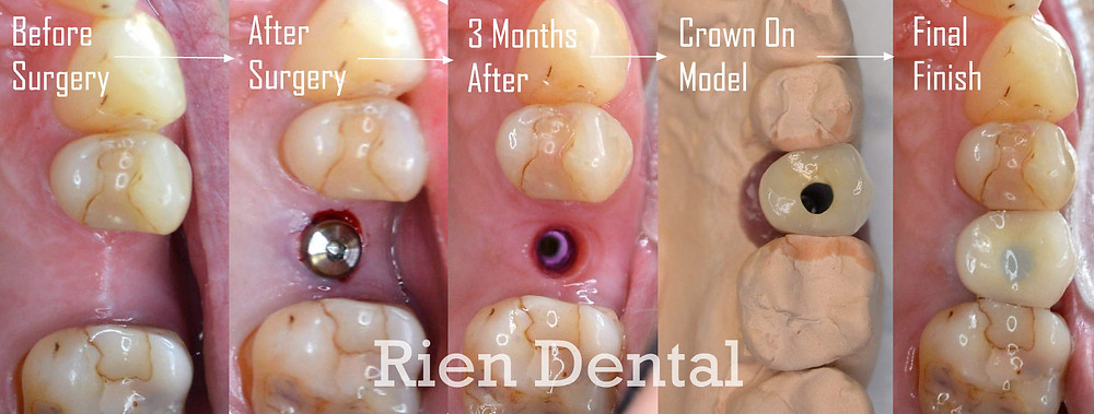 A chronology of a dental implant