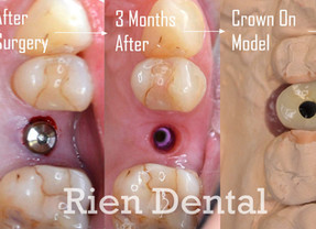 Single Dental Implant - From Start to Finish.