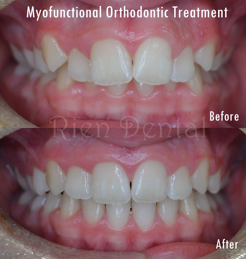 Myofunctional orthodontic