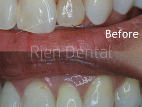 Internal bleaching after root canal treatment.