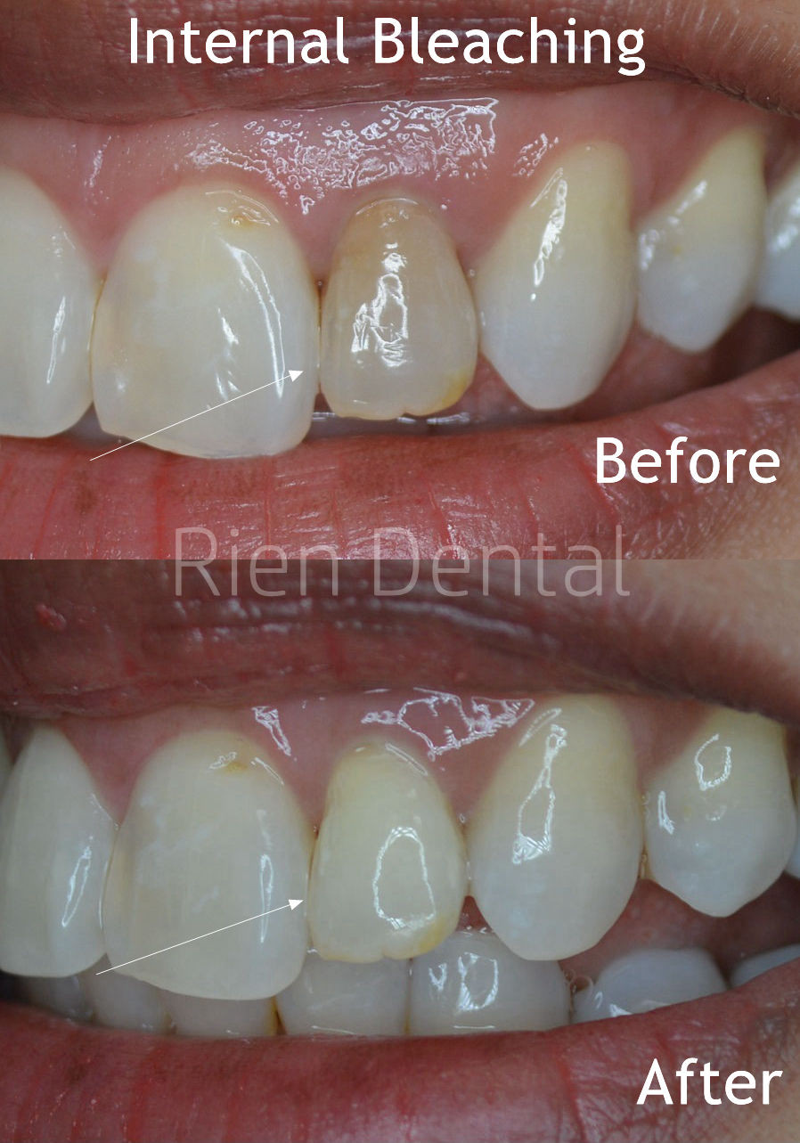 Internal Bleaching After Root Canal Treatment