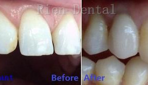 Single dental implant to replace missing upper right canine.